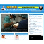 Hair loss niche website